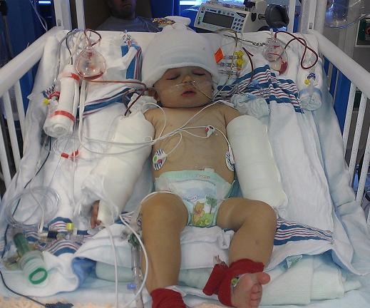 Plea for Prayers: Baby Facing Major Neuro- and PlasticSurgery